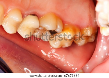 photograph posterior upper molar teeth one stock photo edit now