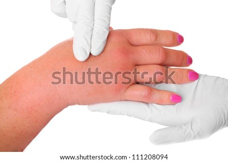 A picture of a swollen hand due to a wasp sting being examined by a doctor over white background - stock photo