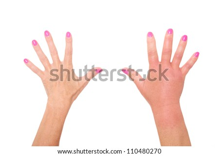 A picture of female hands one swollen because of a wasp sting over white background - stock photo