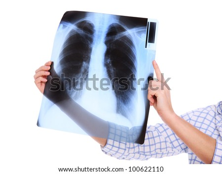 A picture of lungs x-ray over white background - stock photo
