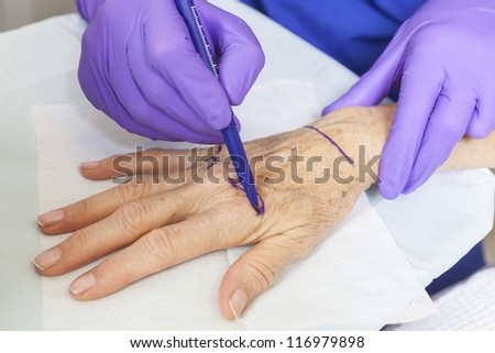 A plastic surgeon using a pen to mark a senior female woman's hand for surgery - stock photo