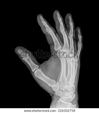 A radiography of the right hand