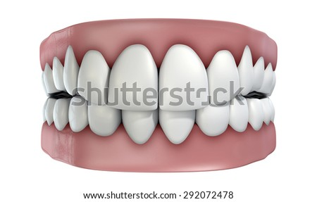 A set of false teeth on an isolated white studio background - stock photo