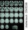 A sheet of MRI (Magnetic Resonance Images) of the brain - stock photo