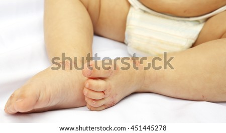 A small legs of child covered by eczema