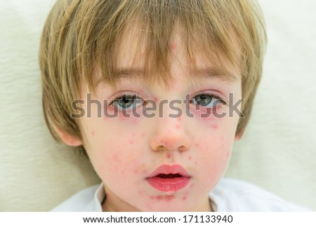 A three year old boy with chicken pox - stock photo