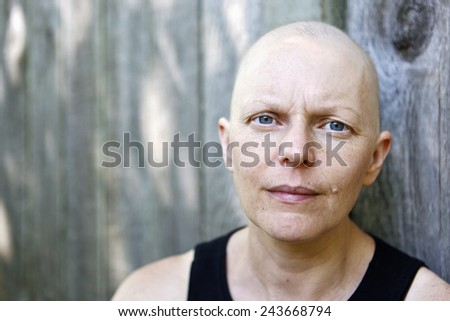 A woman being treated for breast cancer using chemotherapy poses for a portrait. - stock photo
