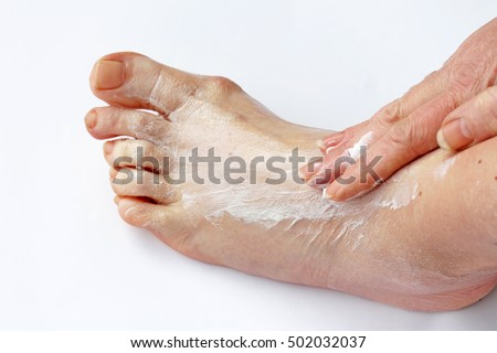 A woman rubs her foot with a painful ointment. A woman spreads cream on her foot
