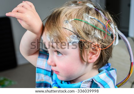 A 2 year old boy with 24hr EEG electrodes attached to his head - stock photo