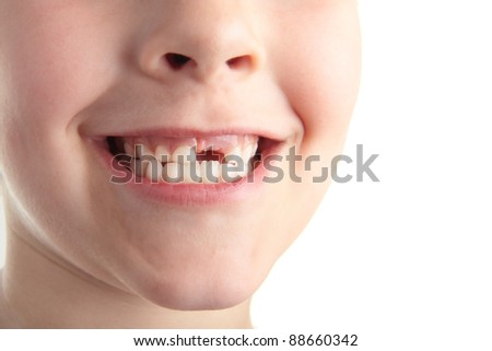 A young boy showing off his new gap. - stock photo
