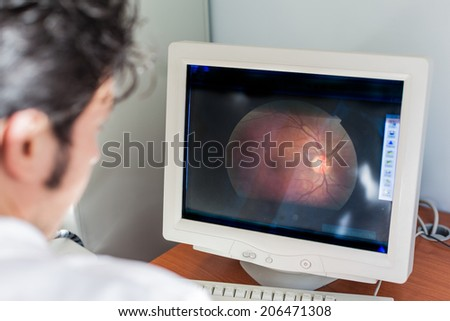 a young ophthalmologist looking at a retina scan in a computer monitor - stock photo