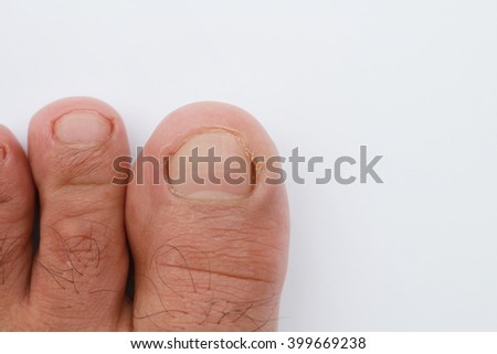abstract foot. Thumb nails to figure out which foot. Abstract Hong Kong foot disease. Health pedicure, men's wear sneakers intermittent Mesa Resort. - stock photo