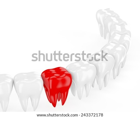 Aching tooth in row of healthy teeth. 3d - stock photo