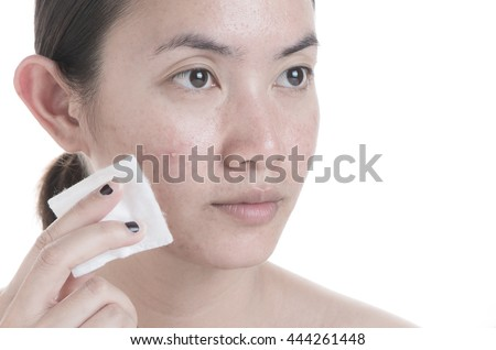 Acne face skin with hand hold cotton to clean on face.