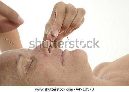 Acupuncture - Application of needles in senior at the spa . - stock photo