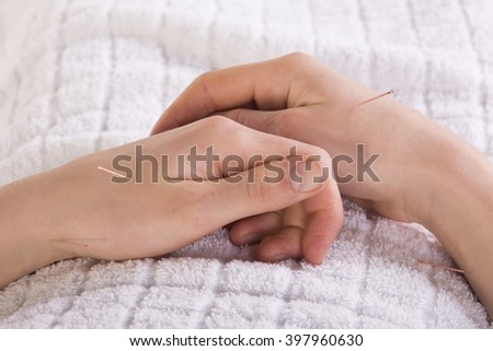 Acupuncture in hand - stock photo
