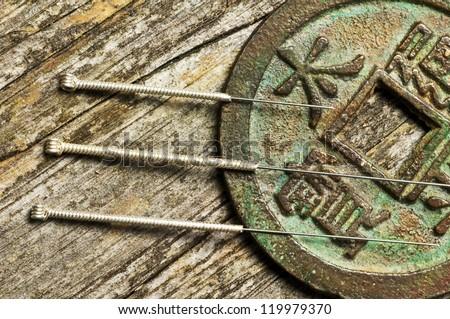 acupuncture needles - stock photo