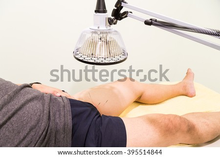 Acupuncture patient being treated with needles on thigh area and infrared heat lamp - stock photo