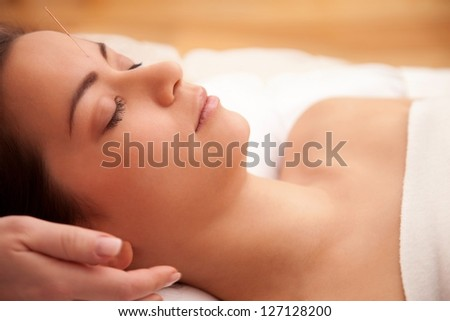 Acupuncture treatment in the head of an asian woman
