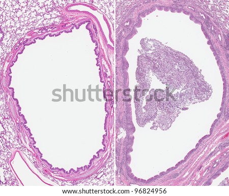 Acute bronchitis. Inflammation of the bronchi (right) with the airway filled with thick mucus, inflammatory cells and debris (sputum). Normal healthy bronchi is on the left with clear airway