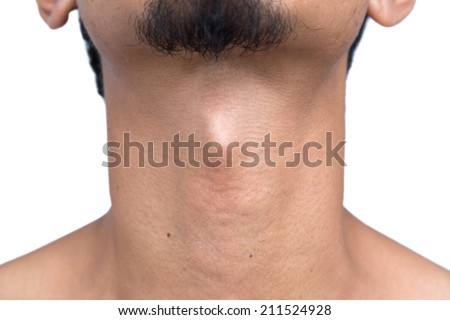Adam's apple - stock photo
