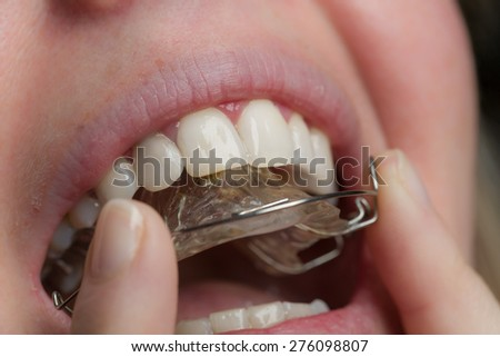 adjust a dental brace in a mouth