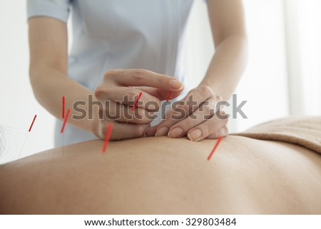 Adult female physiotherapist is doing acupuncture on the back of a female patient. - stock photo