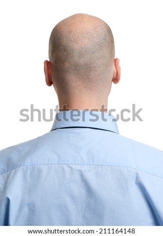 adult man bald head rear view. Human hair loss - stock photo