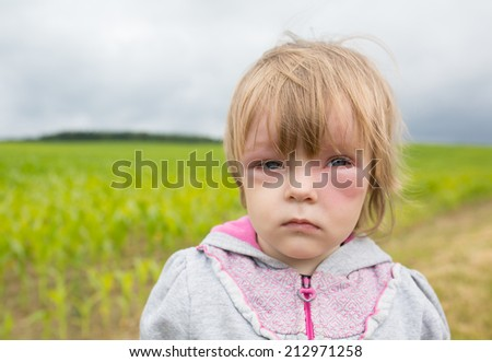 Allergy attack after mosquitoes bit a small girl  - stock photo