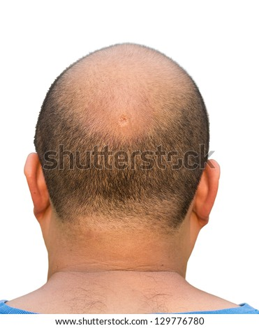 An crater in the middle of the bald head alopecia Asian male man of a fat guy in white isolated background