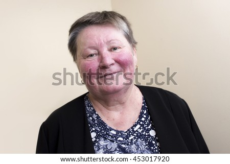An elderly woman with skin condition rosacea characterized by facial redness, small and superficial dilated blood vessels, no make-up, portrait