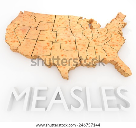 An illustration related to the Measles Virus outbreak in the United States. - stock photo