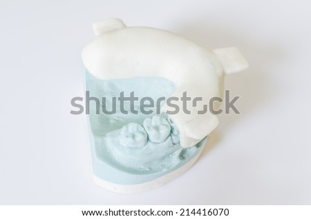 An Individual tray and a dental cast