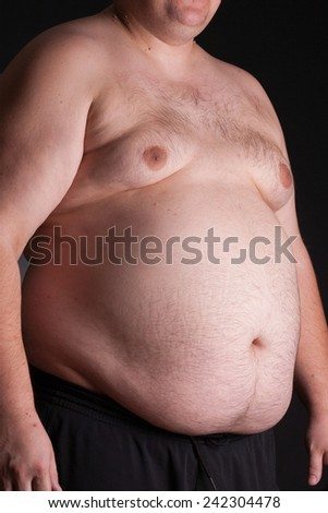 An obese young man without a shirt - stock photo