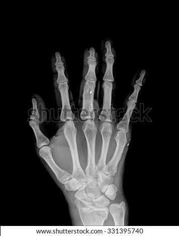 an xray of a hand with broken finger , top view