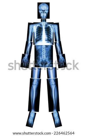 Anatomical Position (X-ray whole body : head ,neck ,thorax ,heart ,lung ,rib ,shoulder ,scapula ,arm ,forearm ,elbow ,wrist ,hand ,digit ,abdomen ,hip ,pelvic ,leg ,thigh ,knee ,ankle ,heel ,foot  ) - stock photo