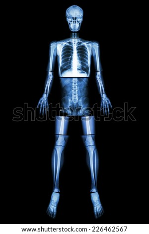 Legs X Ray Stock Image...