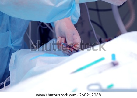 Anesthetist work in the operating room - stock photo