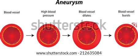 Aneurysm - stock photo