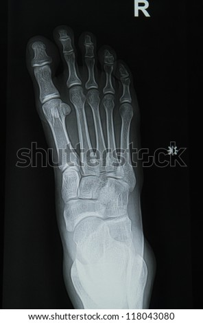 ankle and foot x-rays image - stock photo