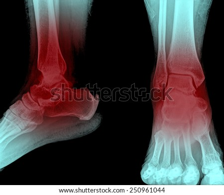 ankle painful  and foot x-rays image - stock photo