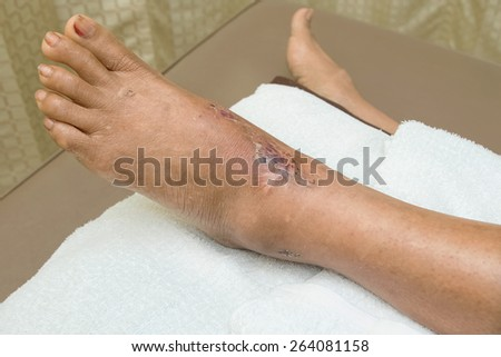 ankle wound suture - stock photo