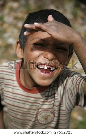 ANNAPURNA, NEPAL – APRIL 3 : A young boy with snotty nose, scabs and missing tooth in Annapurna, Nepal April 3, 2008. Annapurna trail is well known for its trekking activities. - stock photo