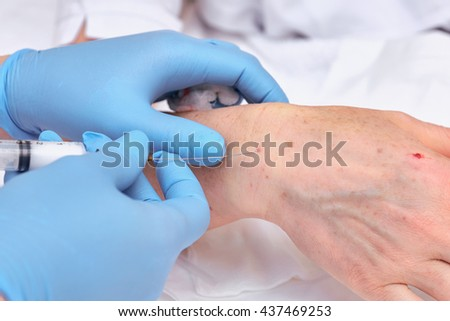 Anti-age injection therapy. Hand rejuvenation