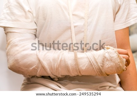 arm fracture. sitting close up girl wearing the white t-shirt, with the white medicine bandage on injury arm and elbow. the shot illustrated medicine, car and other accidents, violence. - stock photo