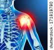 Arm joint pain - stock photo