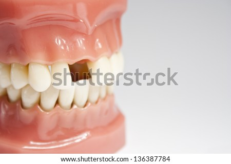 Artificial jaw missing a tooth - stock photo