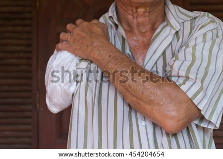 Asia elderly man have tanned skin disabled with one arm and arm prosthetic because accident