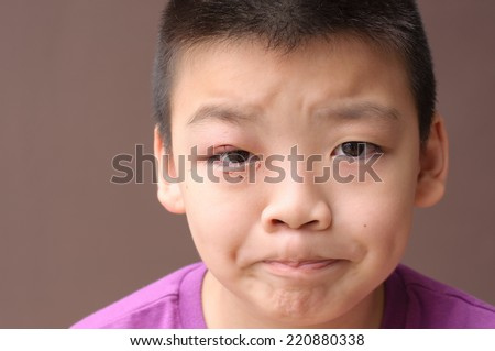 Asian boy after incision and drainage purulent from eyelid, Hordeolum, bored face - stock photo