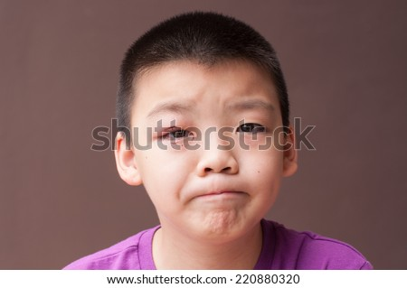 Asian boy after incision and drainage purulent from eyelid, Hordeolum, sorry face - stock photo
